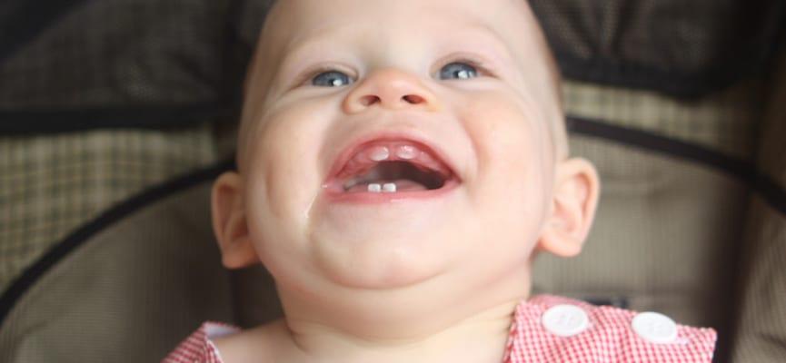doktersehat-gigi-bayi