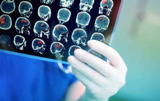 gejala-tumor-otak-doktersehat