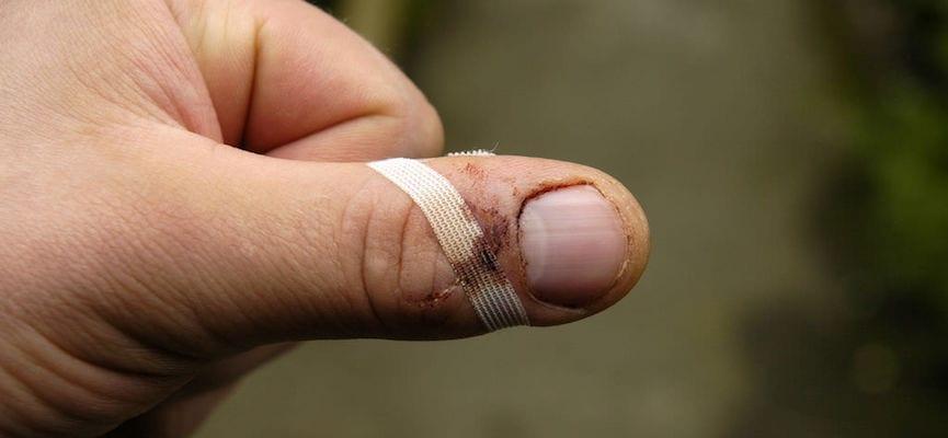doktersehat-tangan-jari-luka