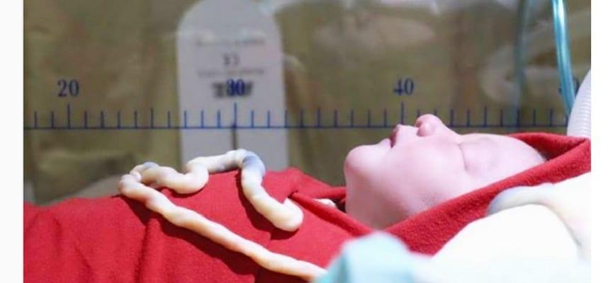 doktersehat-atiqah-hasiholan-placenta