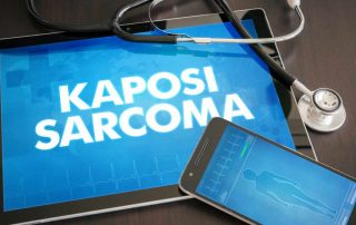 sarkoma-kaposi-doktersehat