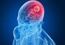 kanker-otak-doktersehat