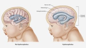 Hidrosefalus-pada-bayi
