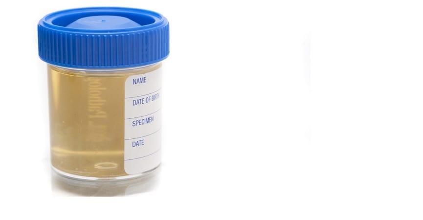 Urine Bisa Dipakai untuk Mendeteksi Kanker?
