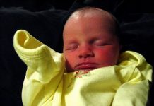 Doktersehat-bayi-kuning