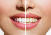 pemutih-gigi-doktersehat_167843159