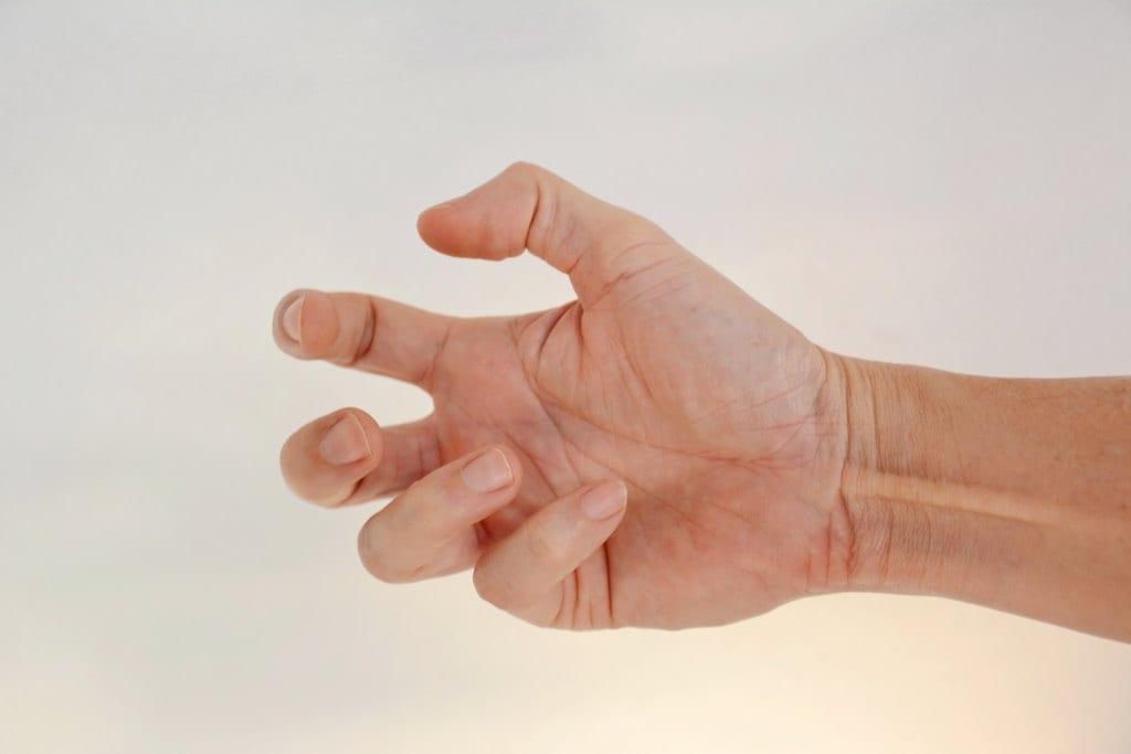 Distonia: Gejala, Penyebab, Diagnosis, dan Pengobatan
