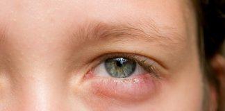 mata-bengkak-pada-anak-doktersehat