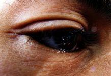 Doktersehat - Mata Berair