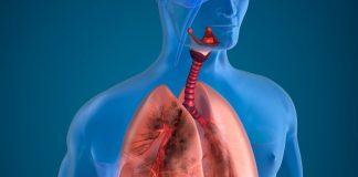doktersehat-Emboli-Paru-Penyakit-Paru-Obstruktif-Kronik-PPOk-1024