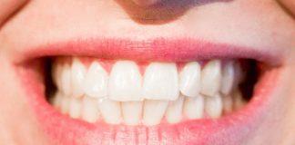 doktersehat-gigi-goyang