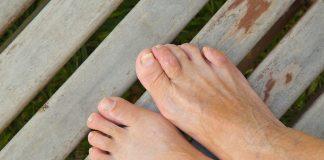 doktersehat-kaki-nyeri-jari-jamur-kuku-1024