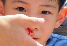 mimisan-pada-anak-doktersehat