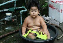 Doktersehat - Obesitas Anak