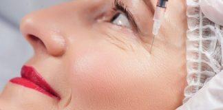 cara-menghilangkan-kerutan-di-mata-doktersehat