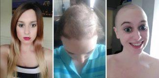mencabut_rambut_doktersehat_1