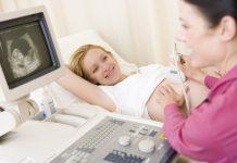 doktersehat kelahiran caesar
