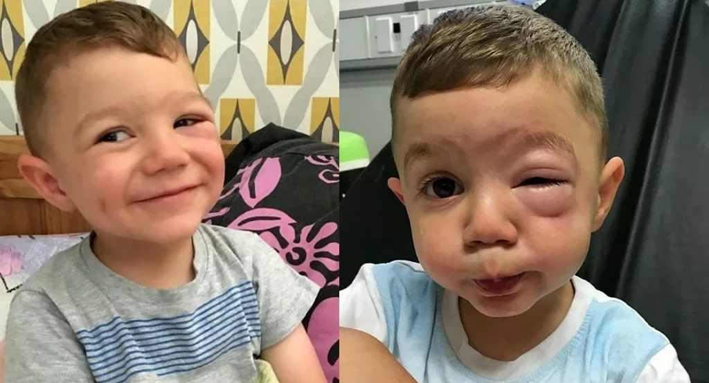 mata_bengkak_alergi_kacang_doktersehat_1