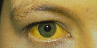 penyakit-kuning-doktersehat