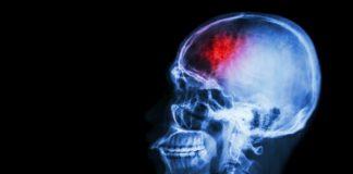 stroke-doktersehat
