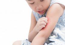 alergi-dingin-doktersehat