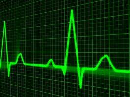 denyut-jantung-normal-doktersehat