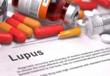penyakit-lupus-doktersehat