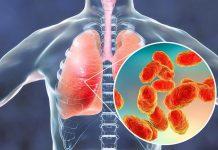 pneumonia-doktersehat