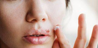 cara-mengatasi-herpes-alami-aman-doktersehat