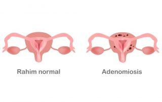 adenomiosis-doktersehat
