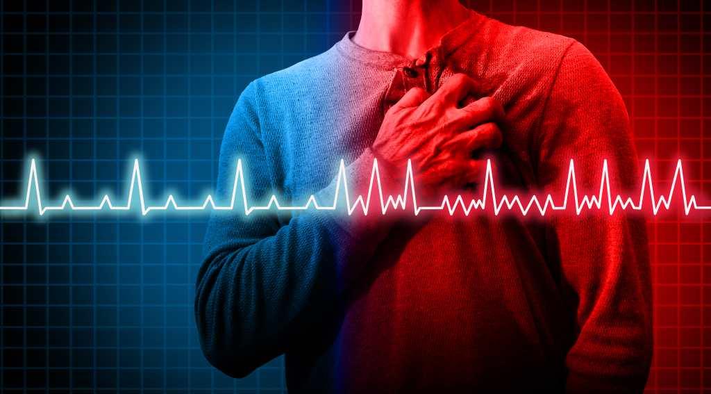 Aritmia: Penyebab, Gejala, Diagnosis, dan Pengobatan