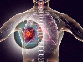 gejala-kanker-paru-paru-doktersehat