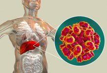hepatitis-E-doktersehat