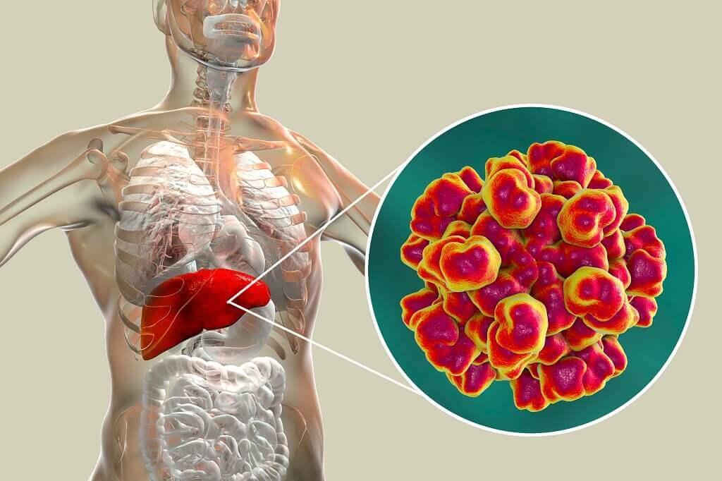 Hepatitis E: Penyebab, Gejala, Diagnosis dan Pengobatan