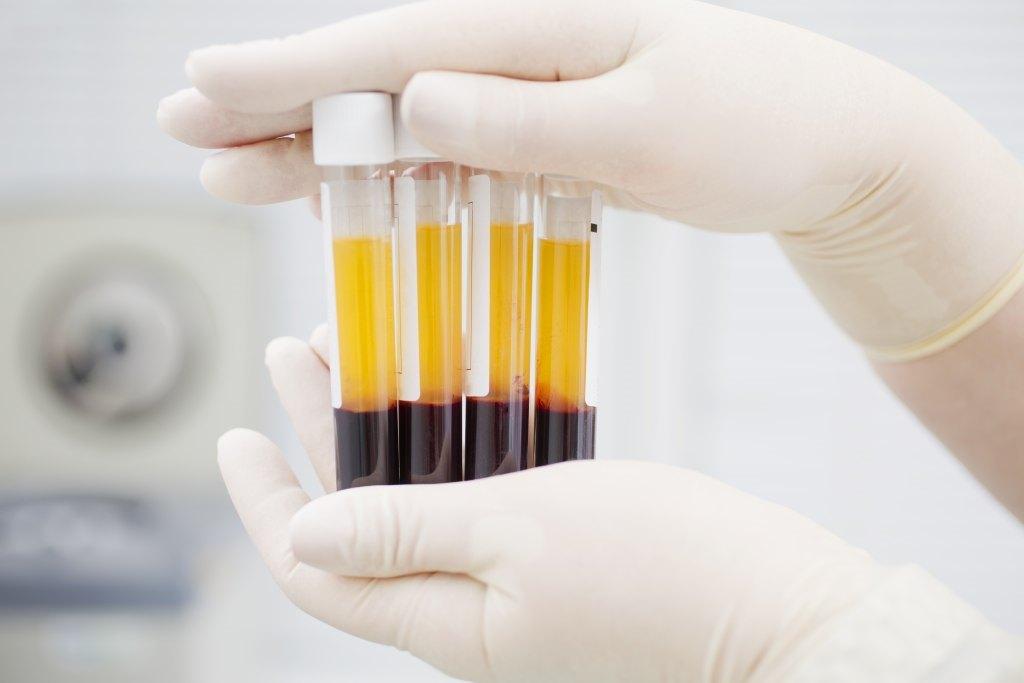 10 Fungsi Plasma Darah untuk Tubuh, Bisa Cegah Penyakit!