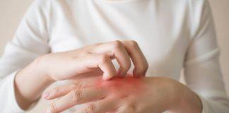 gangguan-kulit-setelah-kemoterapi-doktersehat