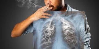 mencegah-kanker-paru-doktersehat