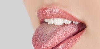 hpv-di-mulut-doktersehat
