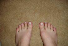 jari-kaki-asam-urat-doktersehat