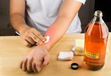 obat-gatal-tradisional-doktersehat