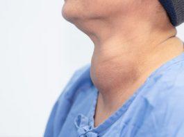 benjolan-di-leher-doktersehat