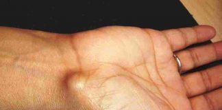kista-ganglion-doktersehat