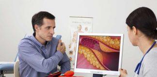 kolesterol-dalam-tubuh-doktersehat