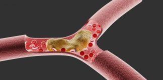 aterosklerosis-adalah-doktersehat