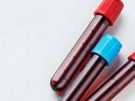eritrosit-adalah-doktersehat