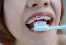 tips-merawat-gigi-behel-agar-tetap-sehat-doktersehat