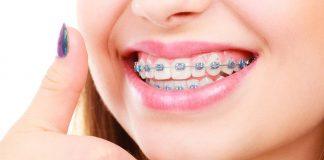 gigi-jonggos-doktersehat