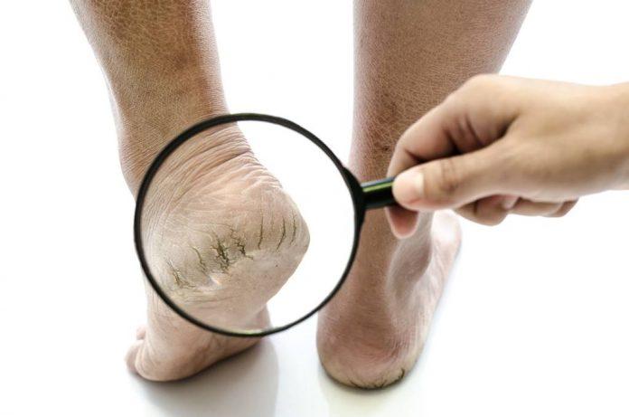 kaki-kering-doktersehat