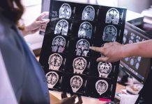 gejala-atrofi-otak-doktersehat