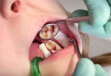 bahaya-gigi-berlubang-doktersehat